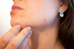 Malattia-della-pelle-i-modi-migliori-per-rendere-il-viso