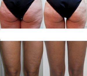 SK Cellulitis – commenti – ingredienti – erboristeria – come si usa – composizione