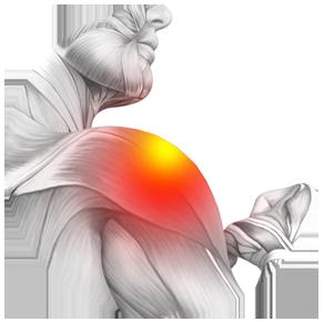 Effetti collaterali - contraindicazioni - fa male - Osteodol