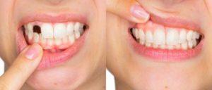 Italia - Happy Smile - funziona - opinioni - chi l'ha provato - recensioni - forum