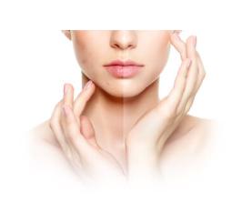 Clear Skin - Italia - funziona - forum - chi l'ha provato - opinioni - recensioni