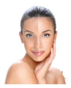 Clear Skin - contraindicazioni - fa male - Effetti collaterali