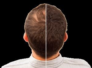 Hair Intense - farmacie - dove si compra - Amazon - prezzo - Aliexpress
