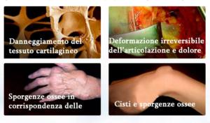 Italia - funziona - opinioni - chi l'ha provato - Arthromagic recensioni - forum