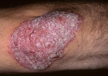 Fa male - effetti collaterali - contraindicazioni - Sunsara Psoriasis