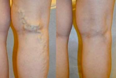 Contraindicazioni - effetti collaterali - fa male - Ultraven